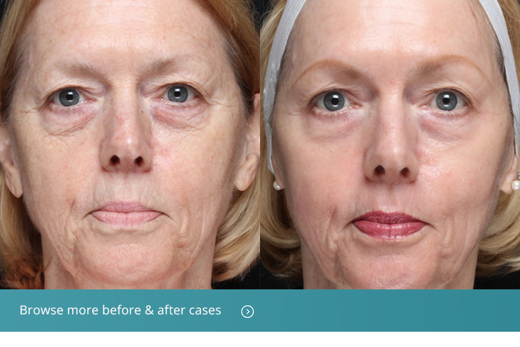 Fractionated CO2 Laser Treatment Beverly Hills, CA - Moy