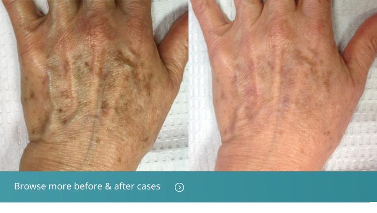 hand rejuvenation treatment