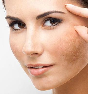 Got Melasma? Piqo4, a new laser for unwanted brown spots