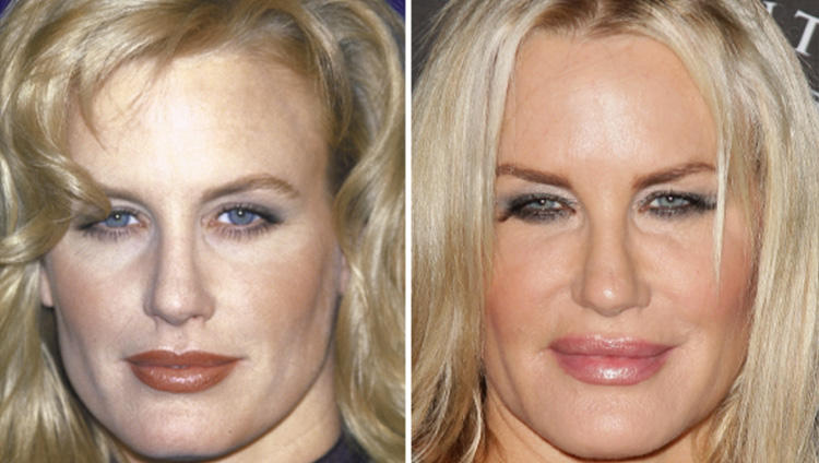 Will I Look Fake Facial Injectables Moy Fincher